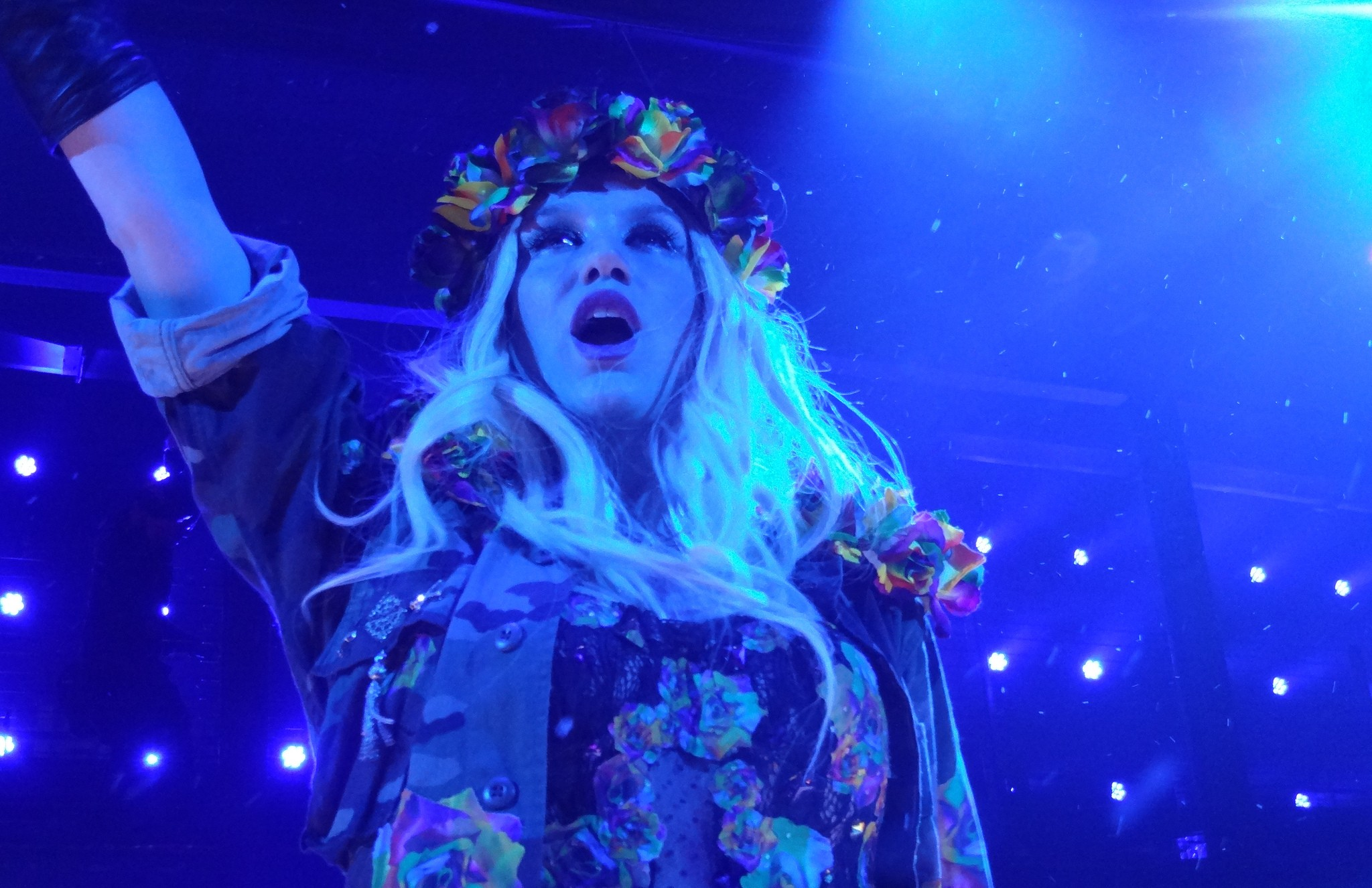 Photo of Kesha's Struggle For Freedom